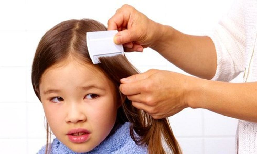 Back-to-School Warning: Head Lice Now Resistant to Treatment in 25 States