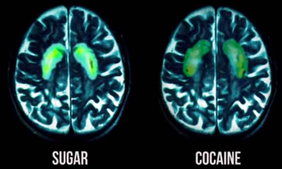 Quitting Sugar Is as Tough as Kicking a Cocaine Habit