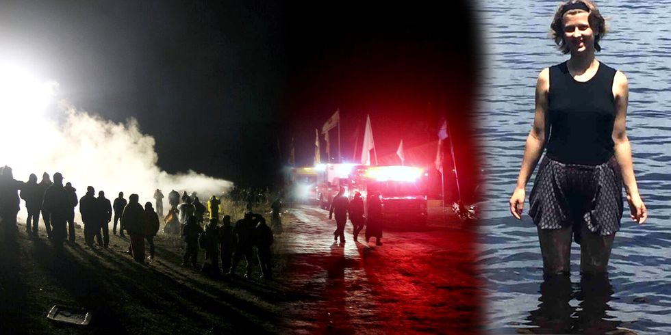 Dakota Access Pipeline Protester Might Lose Arm After 'Shot With a Concussion Grenade' During Police Standoff