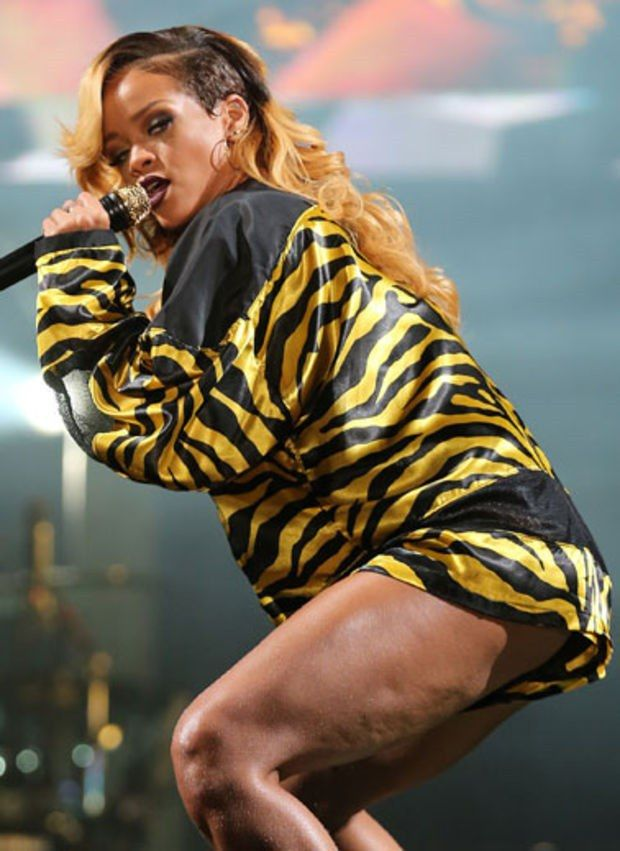 Rihanna is a celebrity that doesn't care about cellulite