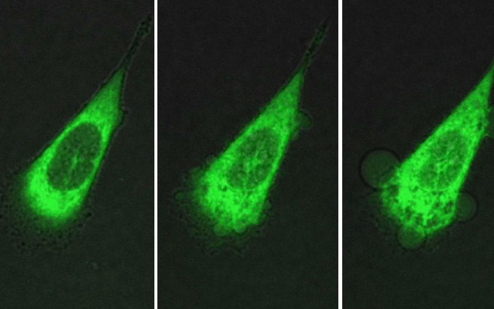 Last photo shows blebbling or bubbling of the cytoplasm leaking out of the cancer cell.