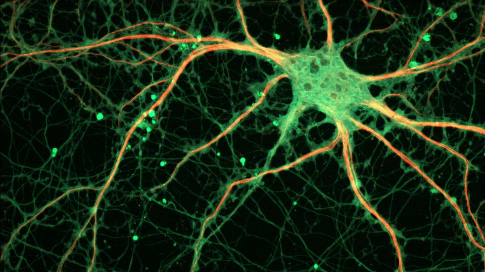 Cultured Rat Hippocampal Neuron