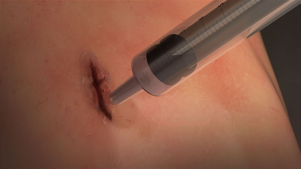 MeTro is applied directly into the wound and activated with light. / Credit: University of Sydney