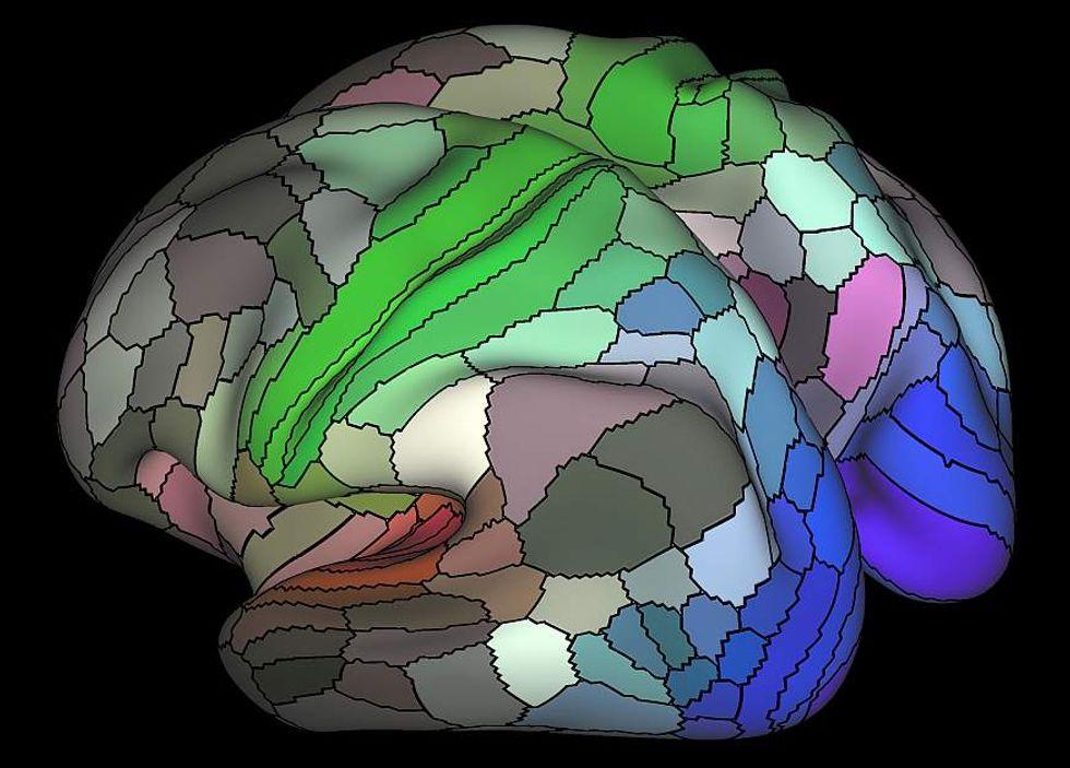 fMRI scan.