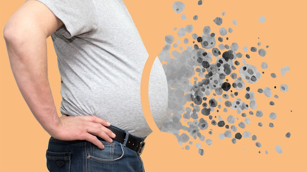 Fat dissolving from a large man's stomach.