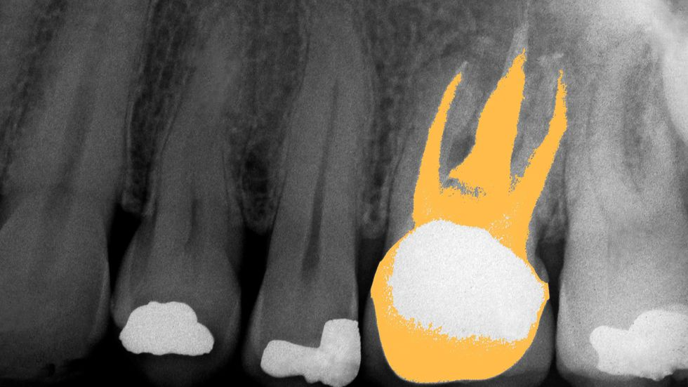 Dental X-Ray showing the upper jaw of a 55-year-old male. One tooth has had a root canal operation performed, and the adjacent teeth show a total of three filled cavities. (Getty)