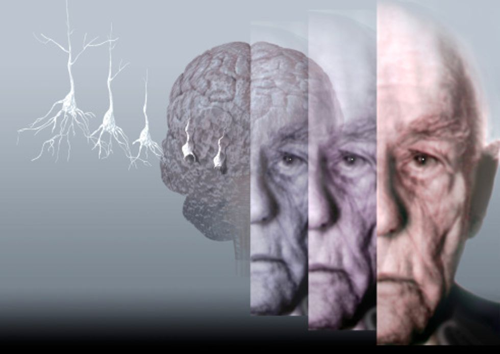 Illustration showing where Alzheimer's is in the brain.