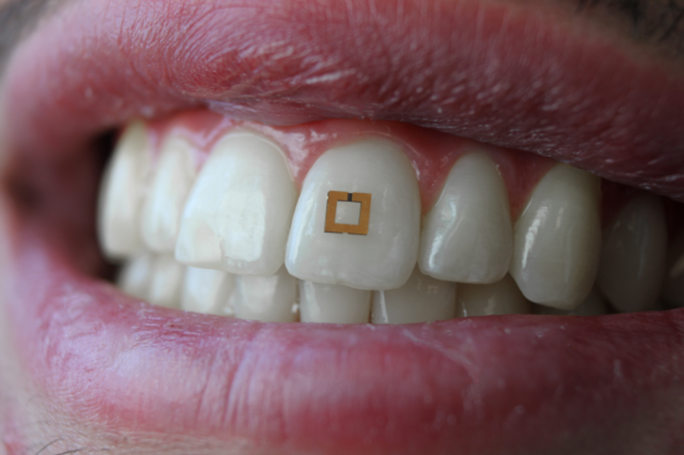 Tufts University scientists have created a tooth-mounted sensor.