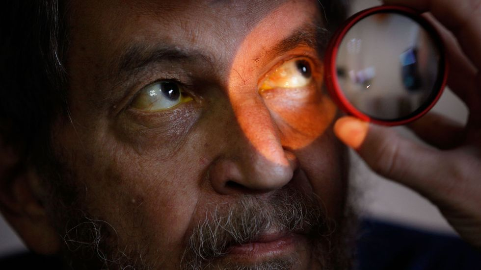 William Weiser has his eyes examined at the Central Blind Rehabilitation Center at the Edward Hines Jr. VA Hospital November 5, 2009 in Hines, Illinois. The Blind Rehabilitation Center offers various programs to help blind veteran