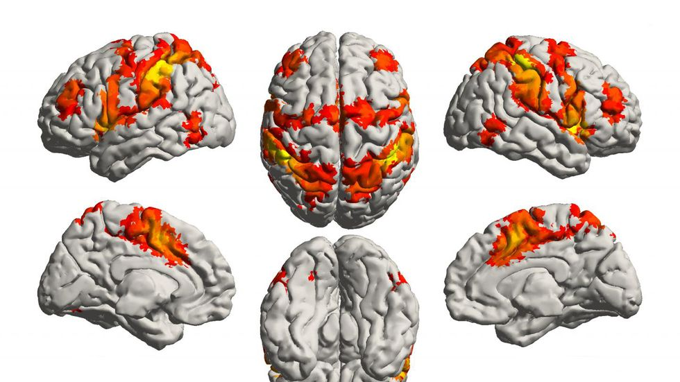 The parts of the brain highlighted in red and yellow are thought to control your sense of attention and memory.