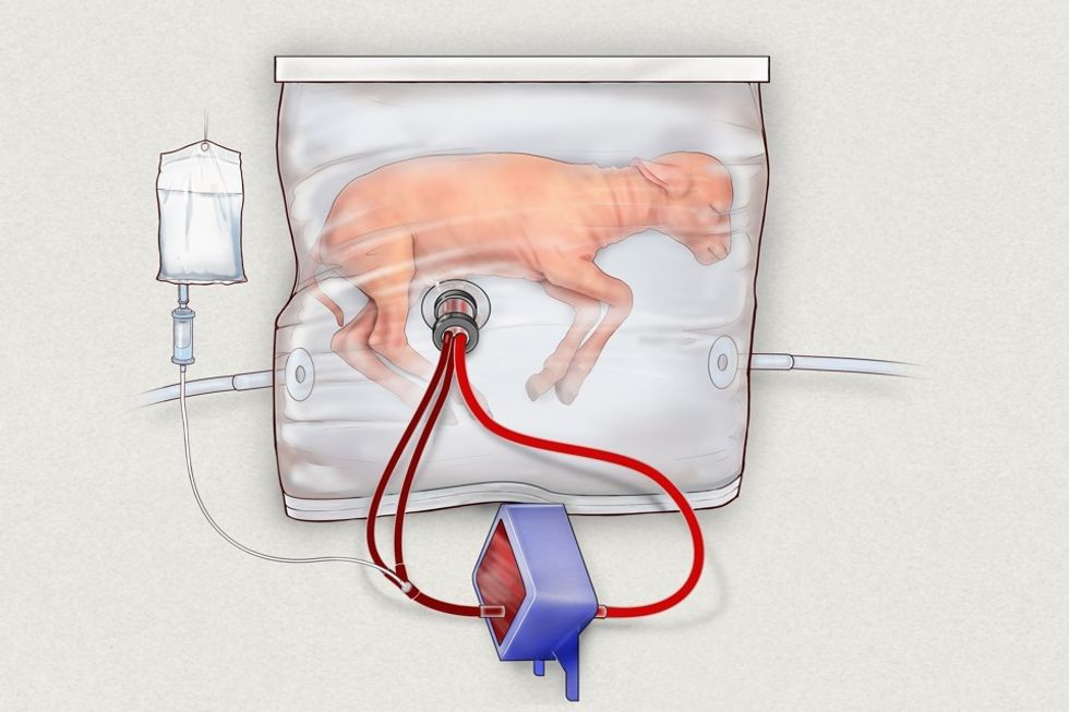 lamb fetus in a BioBag