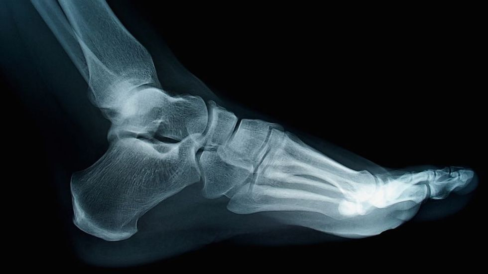 Springy Ankle Device Improves Walking Efficiency 7%