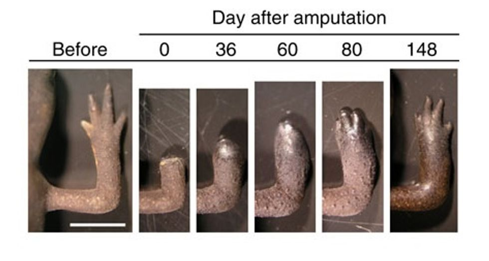 We're One Step Closer to Making Limb Regeneration a Reality