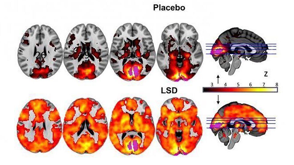 Study Shows How LSD Mimics Infant's Mind as Ego Dissolves
