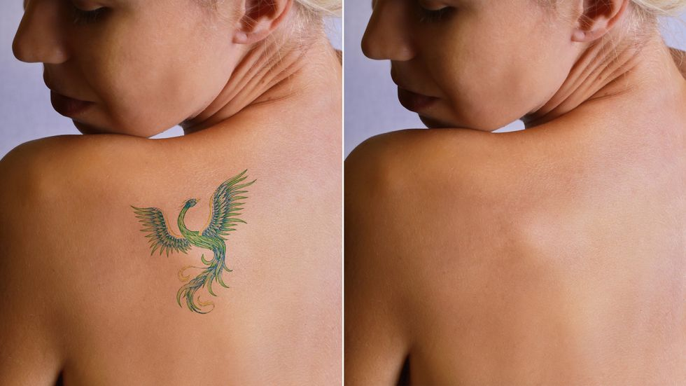 What happens to tattoos when you remove them?