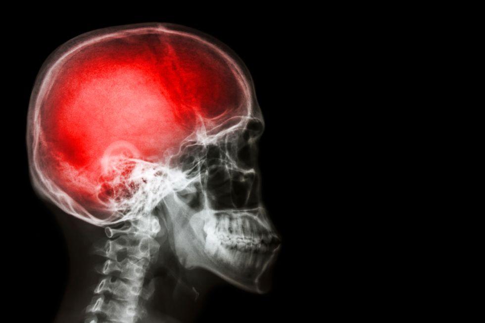 Human brain scan.