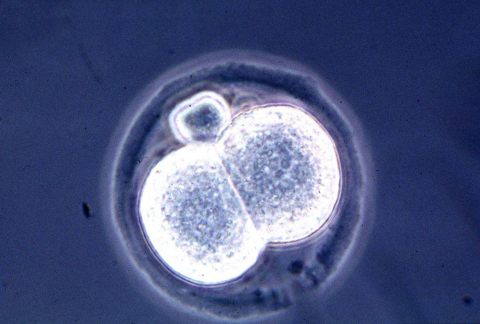 Cloned embryo.