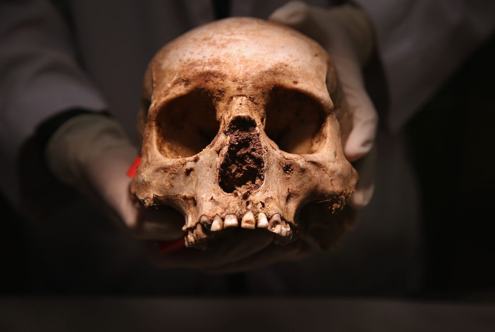 An unearthed skull.