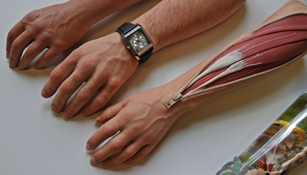 German artificial limb maker.