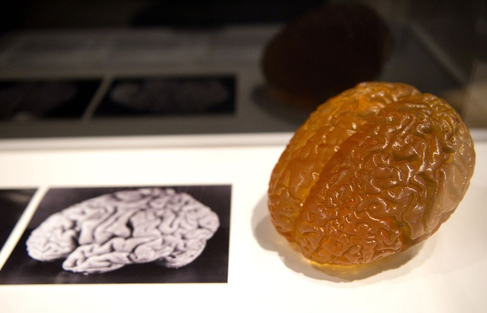 A picture shows a picture and model of Albert Einstein's brain on display during a preview of the Wellcome Collection's major new exhibition 'Brains: mind of matter' in London on March 27, 2012. (MIGUEL MEDINA/AFP/Getty Images)