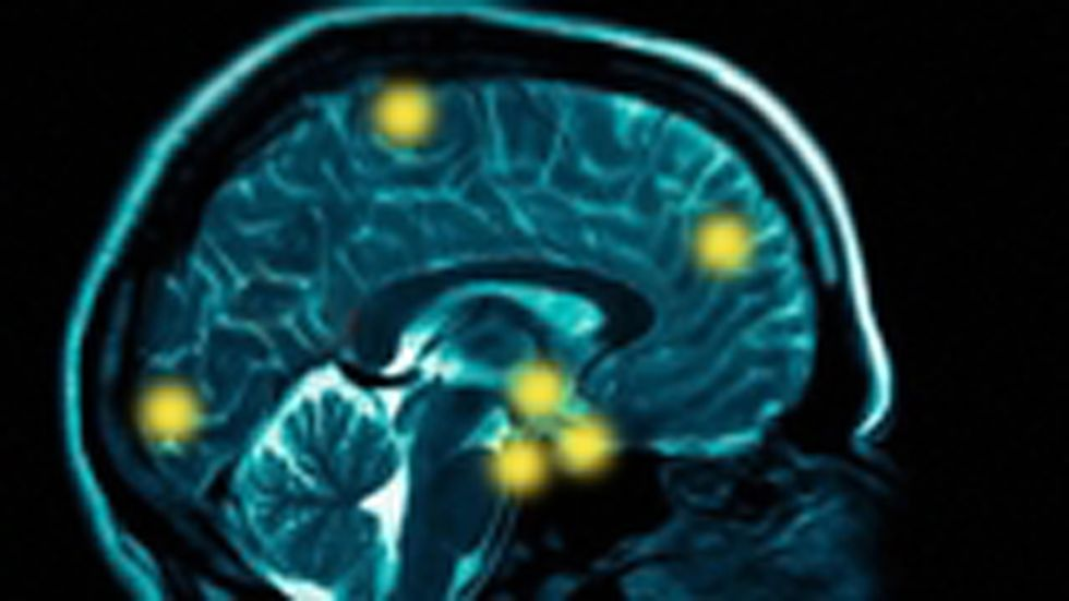 Does the Brain Control the Mind or the Mind Control the Brain?