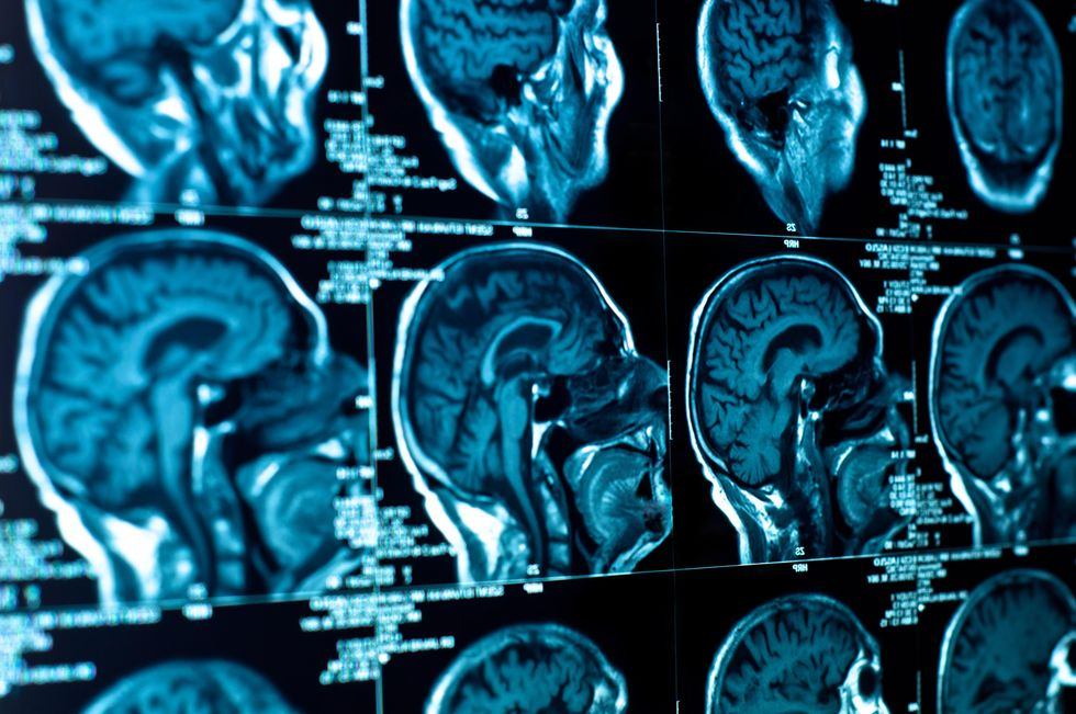 Subconscious Brain Processes Improve Decision Making