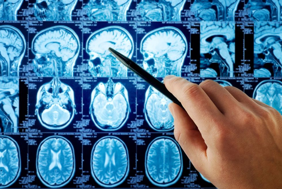 Two Ways Neuroscience Will Impact the Law