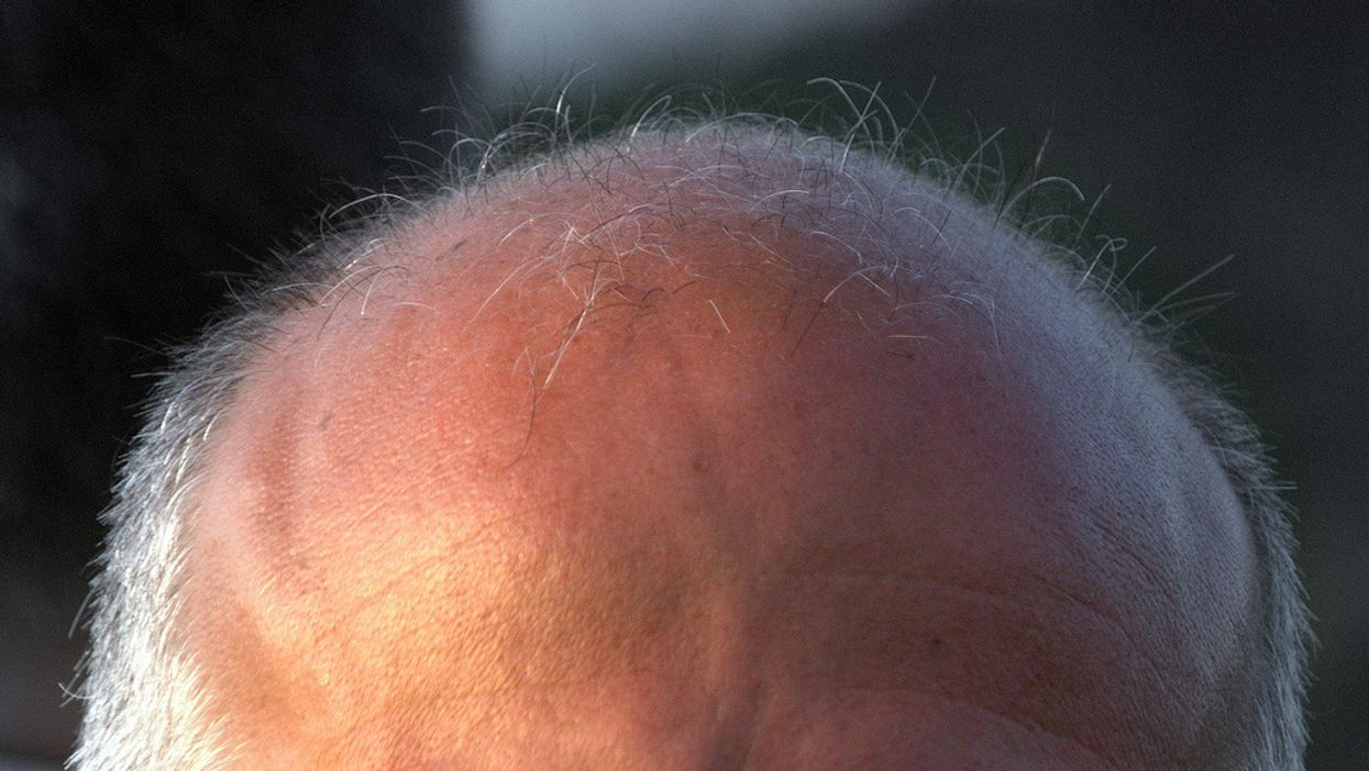 "Scientists reverse hair loss by making scalp ""smell"" sandalwood"