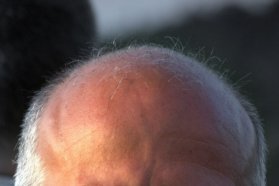 """Scientists reverse hair loss by making scalp """"smell"""" sandalwood"""