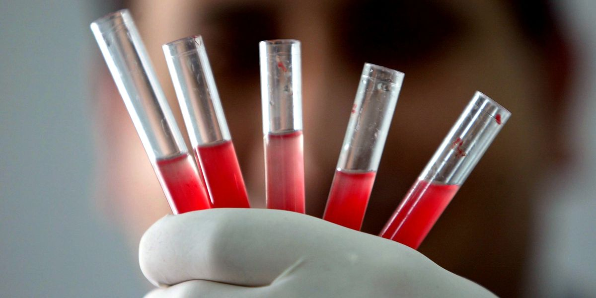 Golden blood: The rarest blood in the world