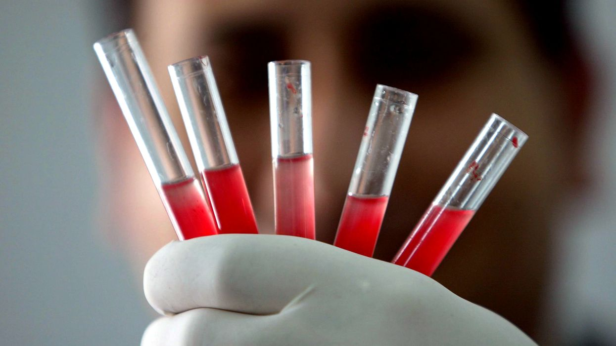Vials of blood in a scientists hand. Golden blood.