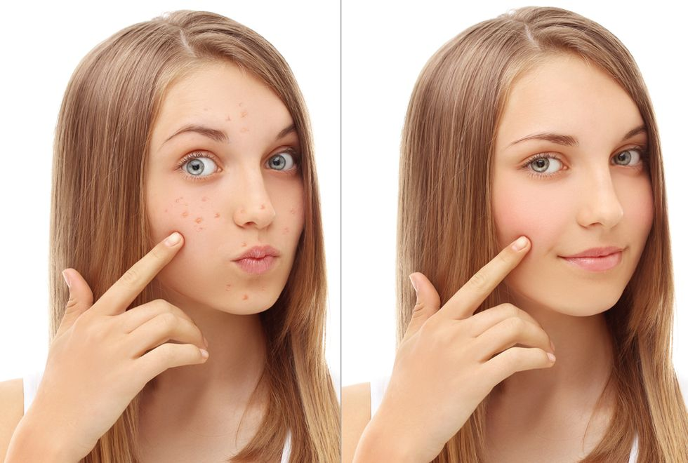 Got Acne? Believe It or Not, There's an App for That.