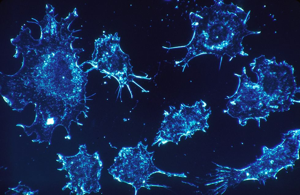 Cancer cells under an electron microscope scan.