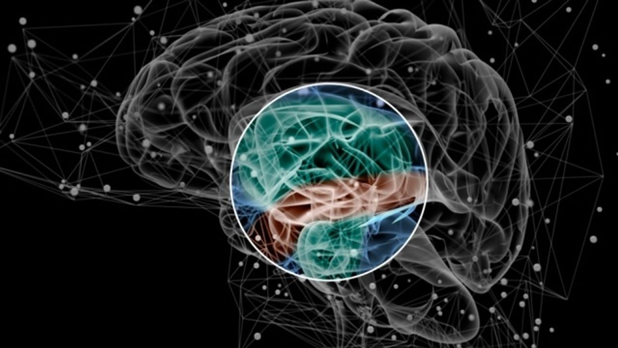 Brain activity pattern may be early sign of schizophrenia