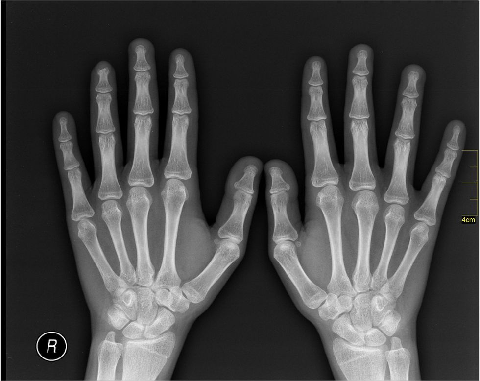 If You've Ever Broken A Bone, There's No Doubt You've Been Asked These 13 Questions