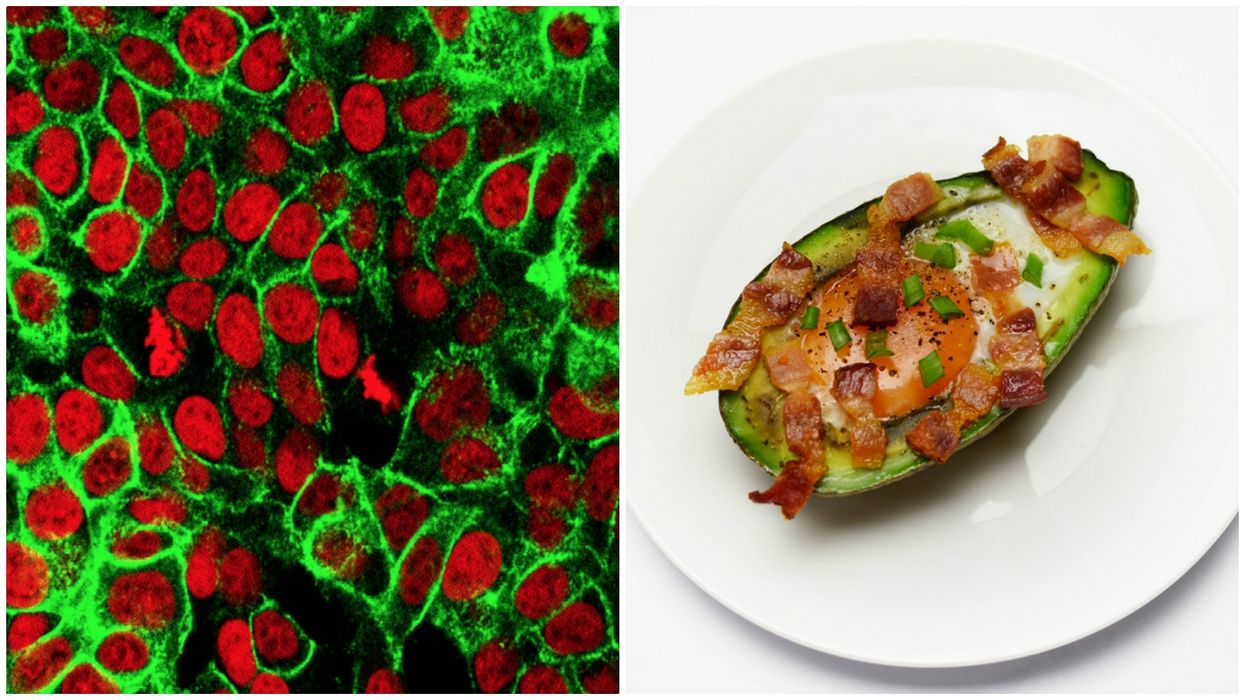 The keto diet and cancer cells
