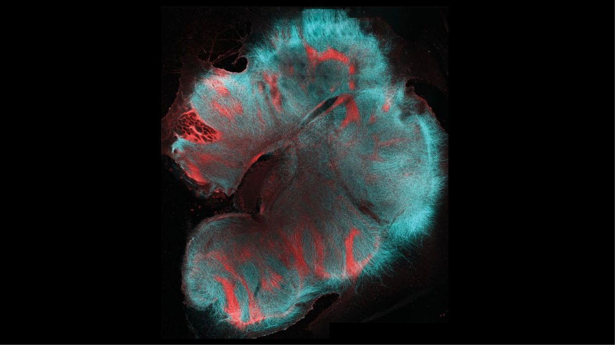 Mini-brains attach to spinal cord and twitch muscles