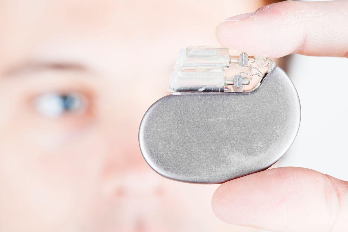 Il pacemaker sarà senza batteria. Verrà ricaricato dal battito del cuore