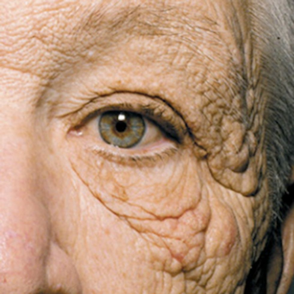 What does 28 years of sun damage look like? This.