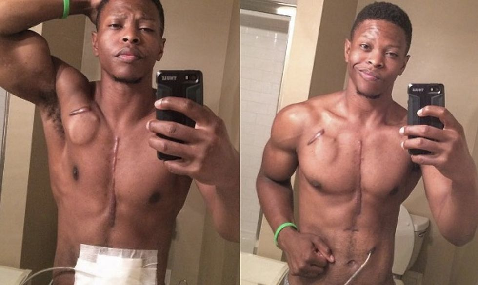 Meet the fitness model using his scars and artificial heart to inspire people.