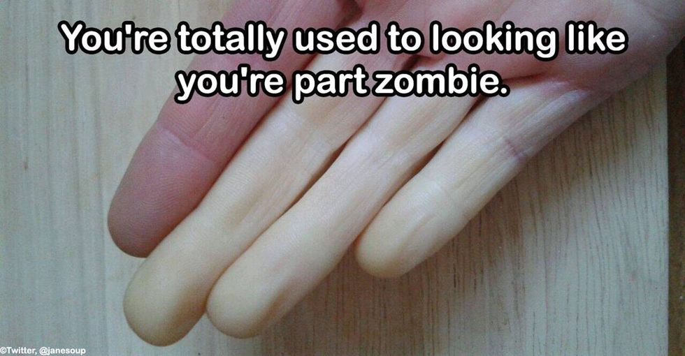 10 things only people with Raynaud's disease will understand.