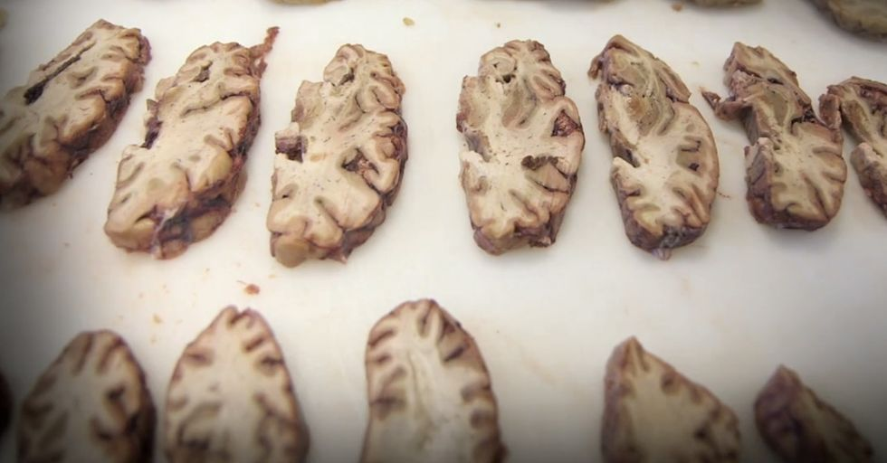 Apparently, This Is Your Brain On Football