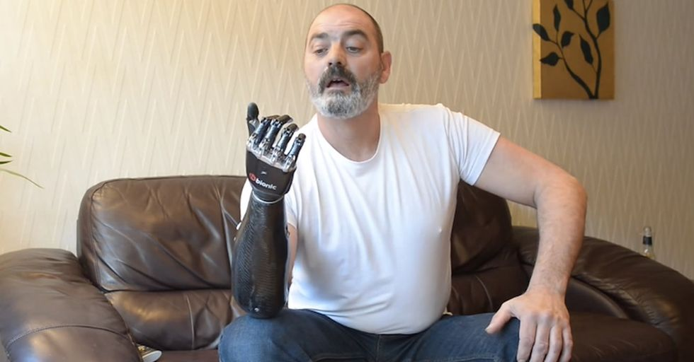 'Terminator' Cyborg Technology Has Arrived: The Most Advanced Prosthetic Limb Ever Created
