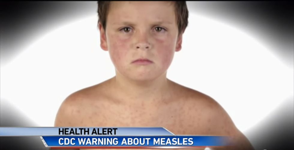 Measles Are Marching Back Into Our Lives, And Here's A Real Reason Why