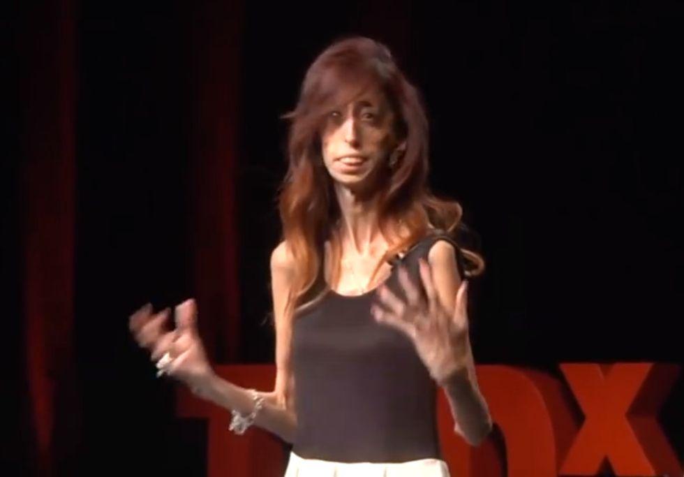 Hear The Powerful Way The 'World's Ugliest Woman' Beat Her Bullies