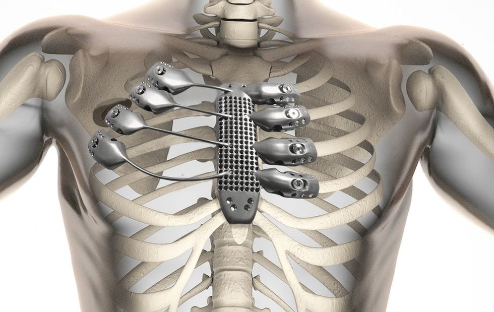 A guy just beat cancer with a freaking 3D-printed titanium chest implant. Take that, cancer.