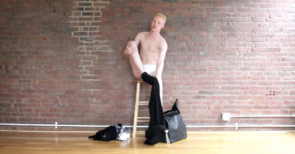 An albino model has had to explain why he's black. And not. At the same time.