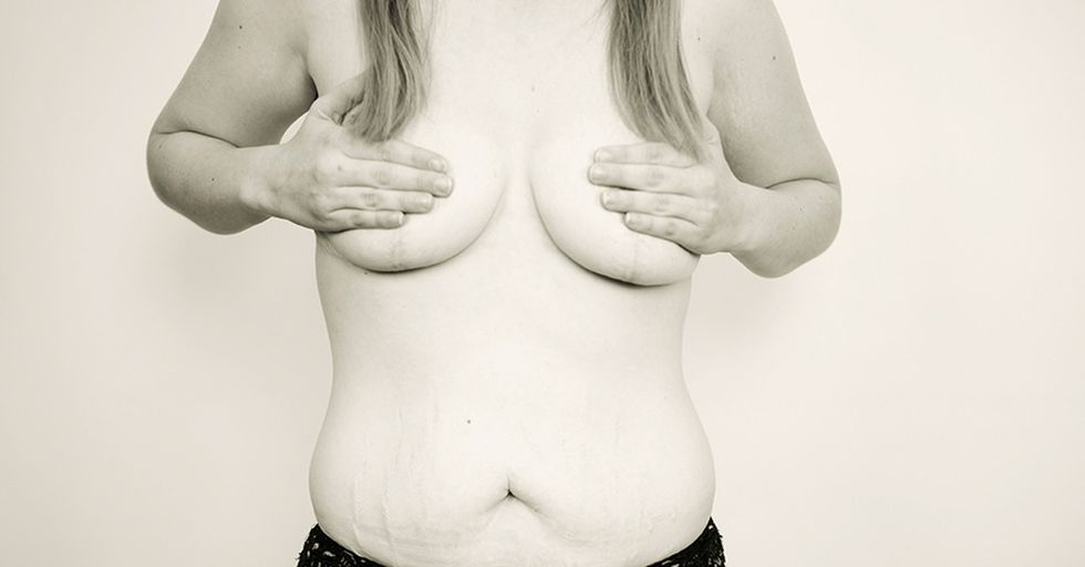 Want An Honest Look At How Motherhood Changes Women's Bodies? Here You Go!