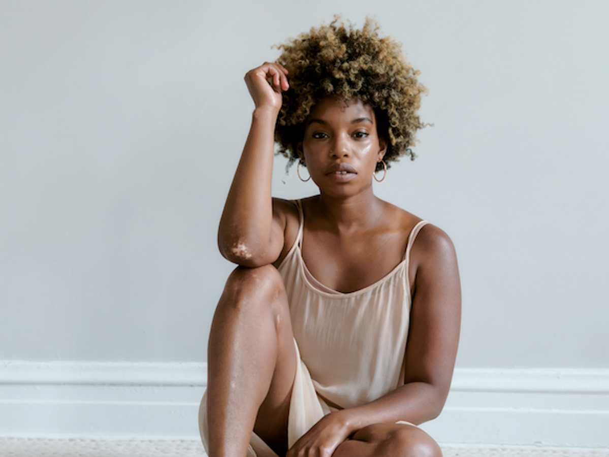 What It's Like To Have Vitiligo