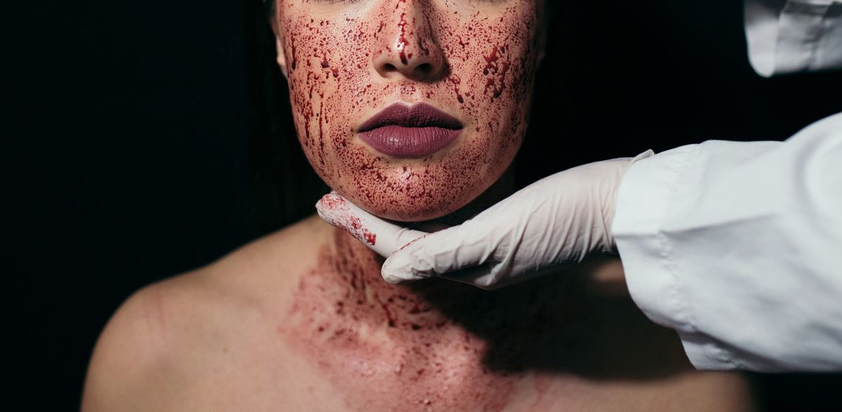 Two People Contracted HIV After Receiving Vampire Facials